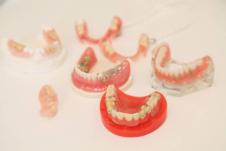 入れ歯治療について