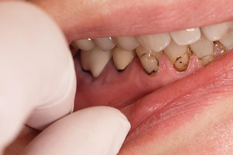 むし歯治療について